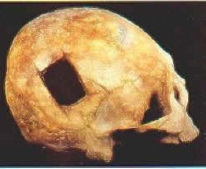 Chirurgia cranica